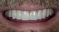 close shot of white teeth