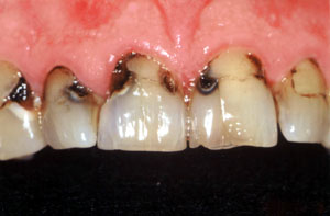decayed teeth before