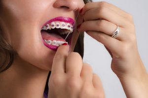 woman braces flossing