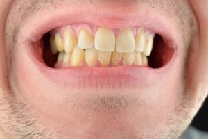 A person opening their mouth to expose their yellow teeth