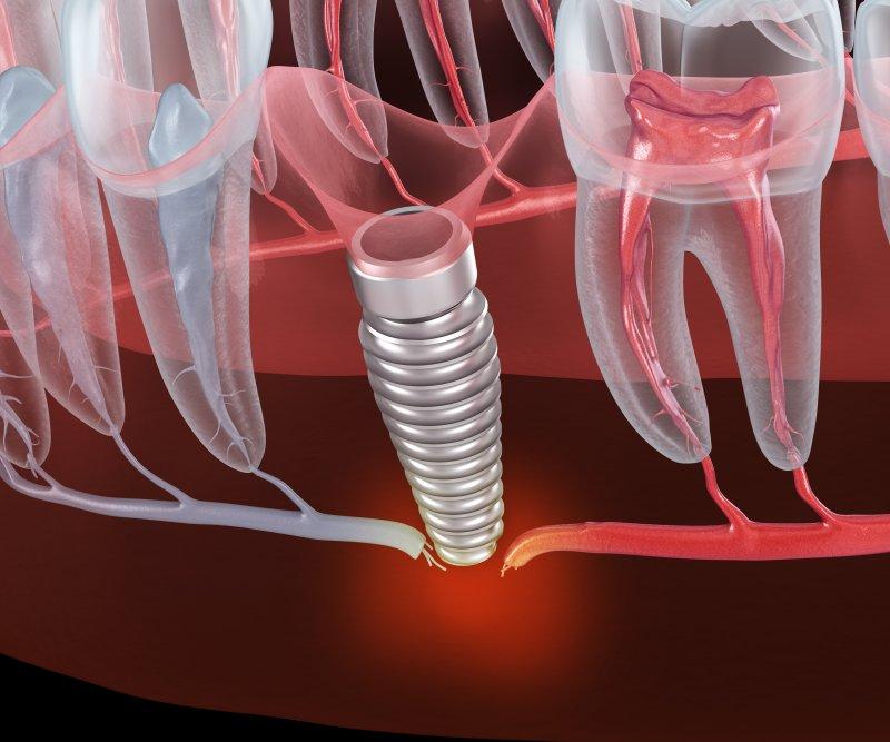 dental implant failure in Richardson